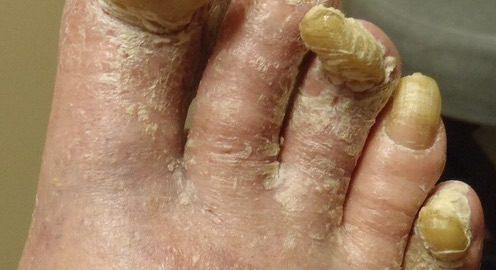 Complications Of Toenail Fungus What Could Happen Fix