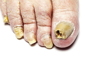 Picture of Advanced Toenail Fungus