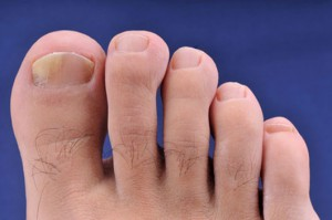 Picture of Beginning Stage of Toenail Fungus