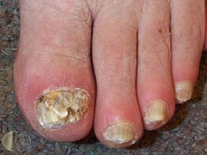 Picture of Advanced, Crumbly Toenail