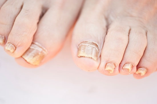 What Is Toenail Fungus I Need Answers Fix Ugly Nails