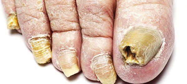 Symptoms Of Toenail Fungus Fix Ugly Nails