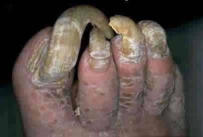 Picture of Ugly Toenails