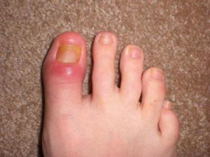 Picture of Cellulitis from toenail fungus