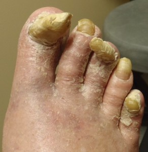 Picture of bad toenail fungus