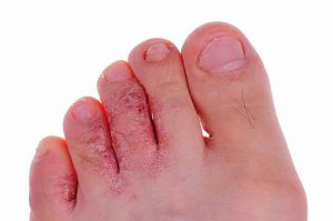 Risk Factors for Toenail Fungus - Foot Fungus