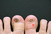 Risk Factors for Toenail Fungus - Injury