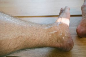 Risk Factors for Toenail Fungus - Sweating