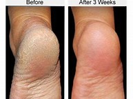 PICTURES OF BEFORE AND AFTER USE OF O'KEEFFE'S FOR HEALTHY FEET