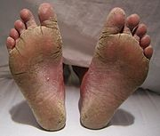 PICTURE OF DRY CRACKED FEET WITH SEVERE FOOT FUNGUS ON POST WHAT IS FOOT FUNGUS