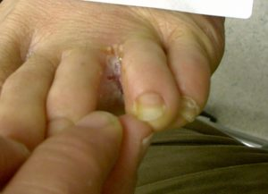 PICTURE OF SCALY FOOT FUNGUS BETWEEN TOES ON POST WHAT IS FOOT FUNGUS