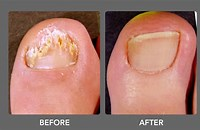 Picture of before and after treatment with Purely Northwest Foot and Toenail System on post Cure Toenail Fungus