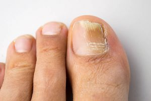 Picture of Toenail Fungus in Attempt to Prevent Toenail Fungus