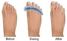 PICTURE OF BEFORE AND AFTER USE OF TOE SEPARATORS FOR OVERLAPPING TOES