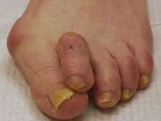 PICTURE OF BUNION AND HAMMERTOES FOR POST TOE SEPARATORS FOR OVERLAPPING TOES