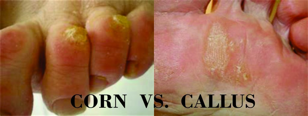 PICTURE OF CORN VS. CALLUS