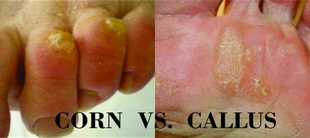 PICTURE OF CORN VS. CALLUS