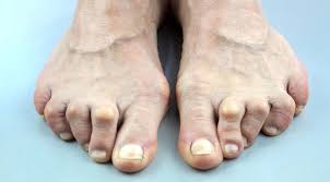 PICTURE OF CROOKED TOES FOR POST TOE SEPARATORS FOR OVERLAPPING TOES