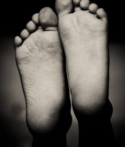 PICTURE OF FEET FOR POST FIBROMYALGIA AND FOOT PAIN