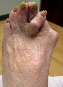 PICTURE OF FOOT WITH SEVERE ARTHRITIS FOR POST FIBROMYALGIA AND FOOT PAIN
