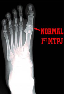 PICTURE OF NORMAL FOOT XRAY WITH WORDS FOR POST FIBROMYALGIA AND FOOT PAIN