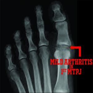 PICTURE OF XRAY WITH WORDS OF MILD ARTHRITIS IN FOOT FOR POST FIBROMYALGIA AND FOOT PAIN