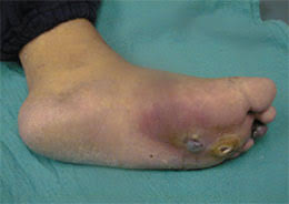 Picture of Infected Ulcer for Post Diabetes and Foot Pain