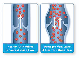 Picture of Venous Valves for Post Diabetes and Foot Pain