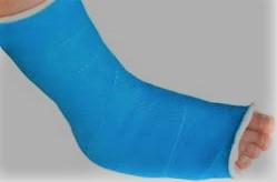 Picture of Foot in Cast for Post Heel Pain in Kids