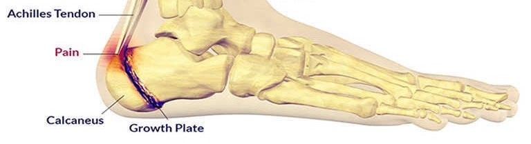Picture of severs disease for post heel pain in kids