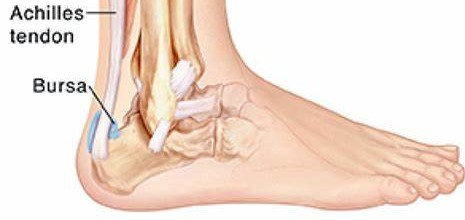 picture of achilles bursitis for post heel pain in kids