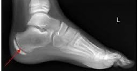 X-Ray of Growth Plate on Heel for Post Sever's Disease in Children